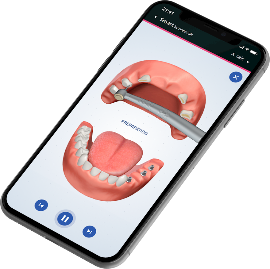 Dental treatment animations